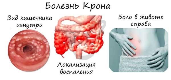Тонкий кишечник: функции и пищеварение