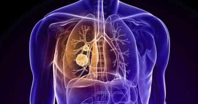 Эвкалипт: описание, фото, полезные свойства, применение в медицине